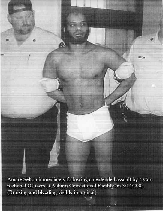 Amare Selton Beaten at Auburn Correctional Facility